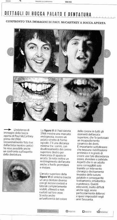 wired_teeth_crop