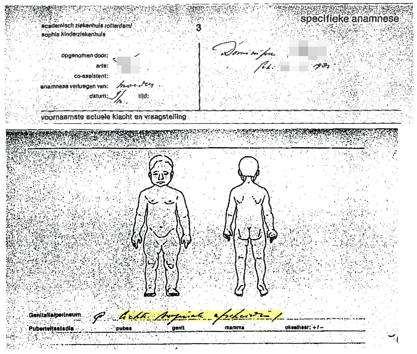 """Twee fragmenten uit een handgeschreven statusrapport van het Sofia kinderziekenhuis, waarbij bij 'genitalia/perineum' geen afwijkingen worden vermeld, behalve """"licht vaginale afscheiding."""""""